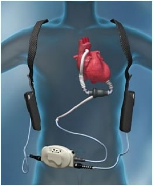 Ventricular Assist Devices (VAD)